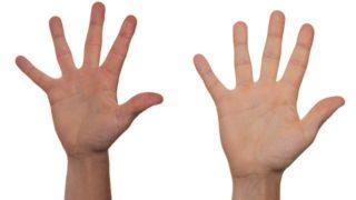 マヤ(Niziu)の手が黄色いのは予選合宿から!病気なのか徹底調査!
